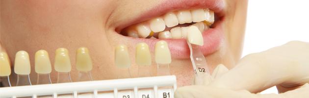 Implantologia - W&B Poliambulatori Brescia